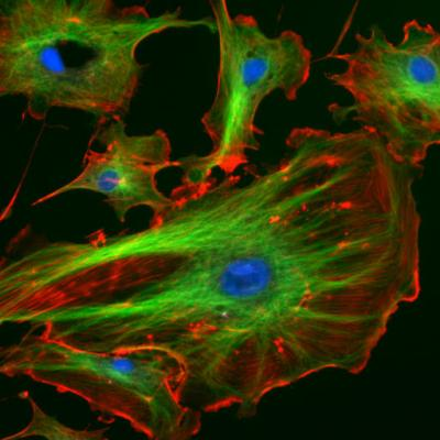 Endothelial cells under the microscope. Nuclei are stained blue with DAPI, microtubles are marked green by an antibody bound to FITC and actin filaments are labelled red with phalloidin bound to TRITC. Bovine pulmonary artery endothelial cells (This is a file from the Wikimedia Commons.)